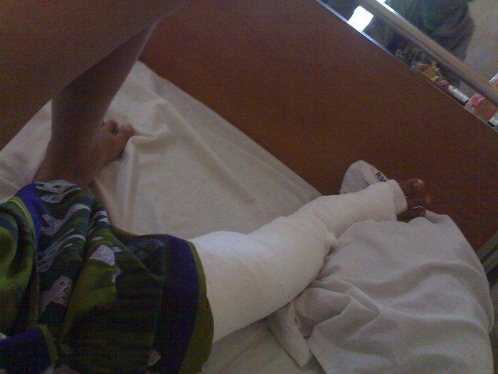 kaki adik saya